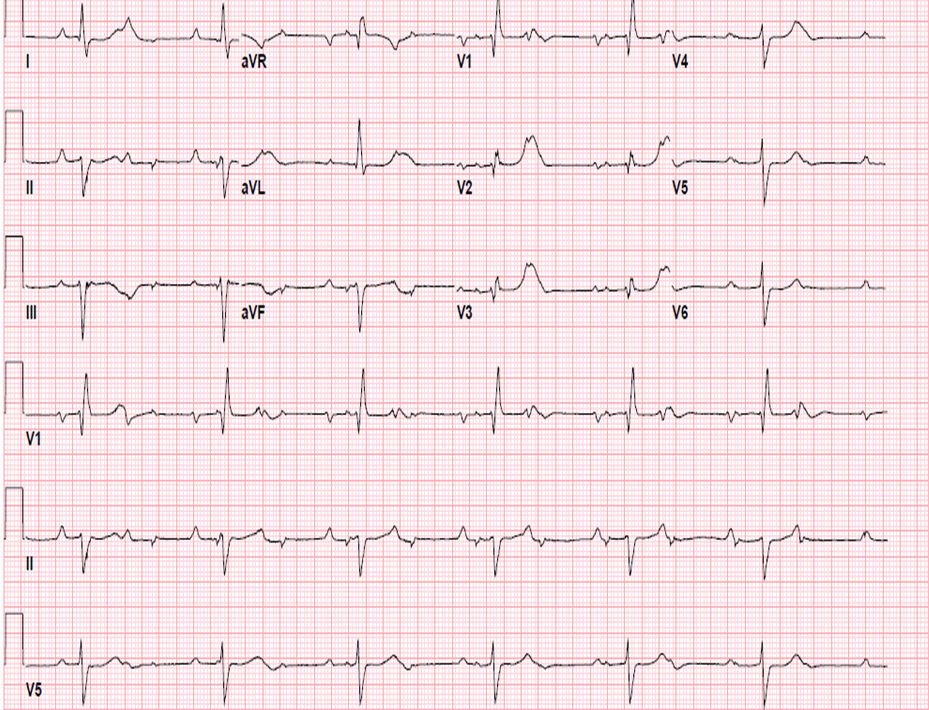 Figure 2. Repeat EKG Showing First Degree (PR Interval 260milliseconds) And  Second Degree AV Block With 2:1 AV Conduction, Ventricular Rate Of 38 Beats  Per ...  2 1 Degree