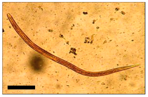 Strongyloides stercoralis Infestation in Indigenous Tapirap  233  Ethnic    Strongyloides Stercoralis