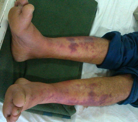 plasmodium vivax malaria with severe thrombocytopenia and varied skin manifestations  a case report