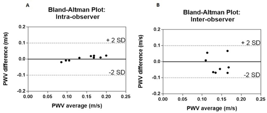 Figure 14 Intra And Inter Observer Bland Altman Analyses For Pulse