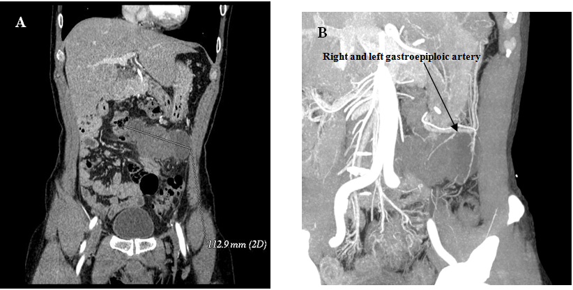 torsion of arteriovenous malformation  u2013 a rare case of