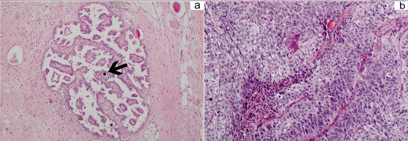 Synchronous Triple Distinct Urological Tumors In A Patient