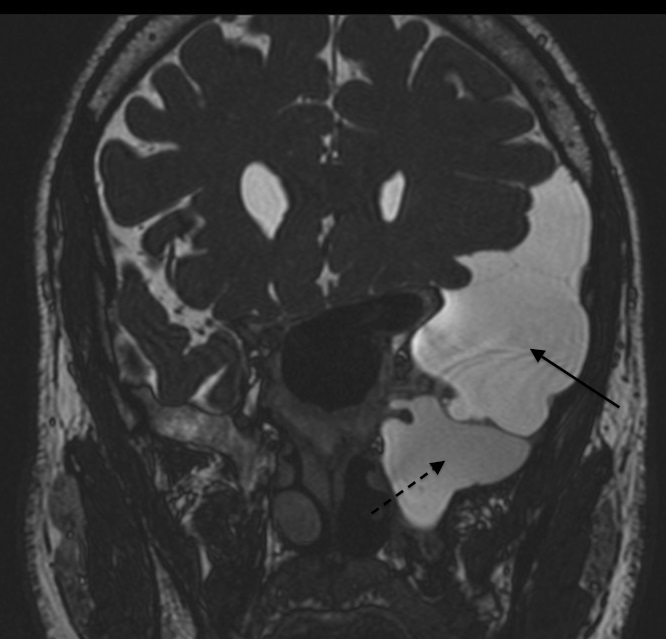 arachnoid cyst in the sphenoid sinus presented with headache and, Human Body