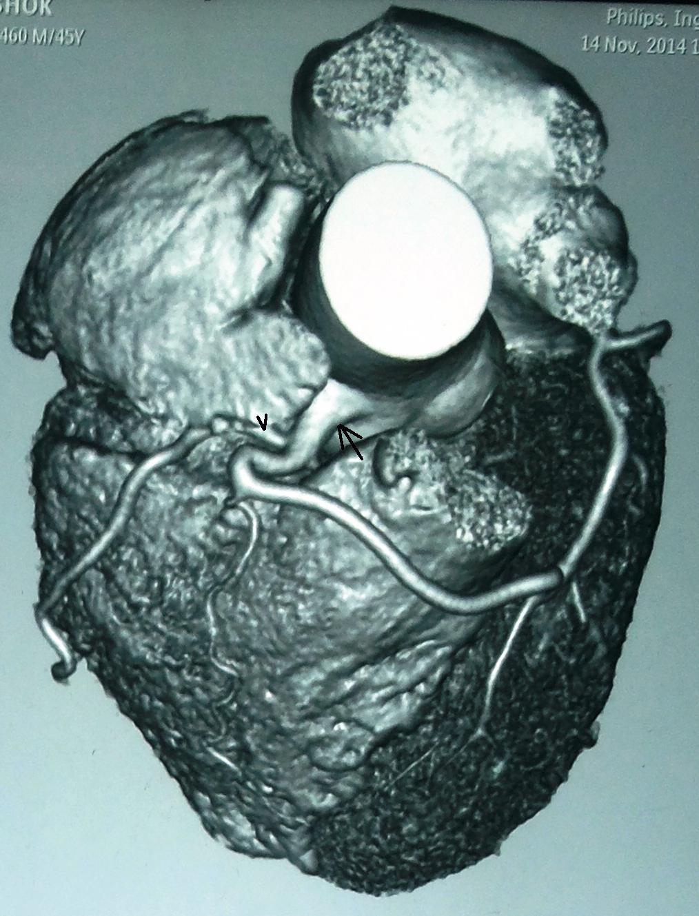 Left Coronary Artery Originating from Right Coronary Sinus – A Rare ...