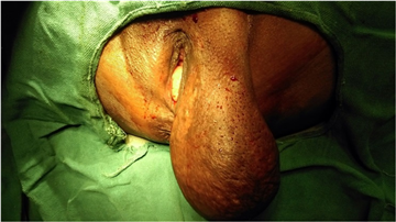 Fatty tumor on vulva pictures