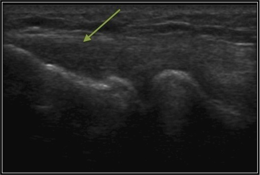 Figure 4.Ultrasound image of the lateral compartment of the elbow ...