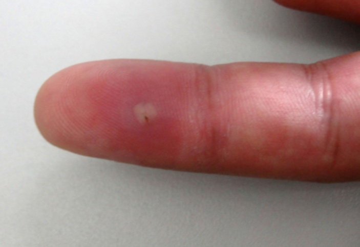 Doctors of reddit, if you have an abscess like this in your finger ...
