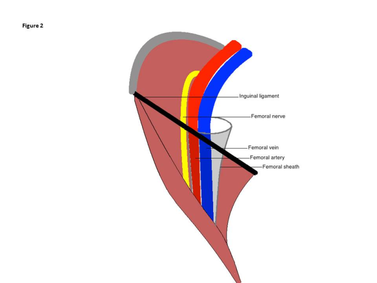 femoral nerve paralysis following open inguinal hernia repair, Muscles