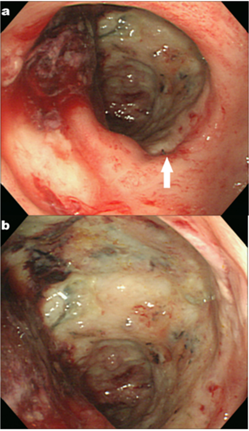 figure 1  colonoscopy shows circumferential necrosis and gangrenous change on the rectum  a