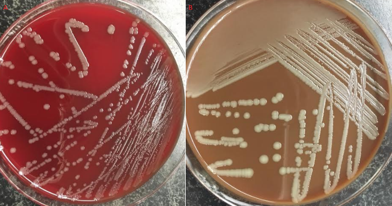 Figure 2 P Multocida Growth On 5 Sheep Blood Agar A