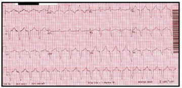 Shift From Left to a Right Bundle Block on ECG Leading to the Diagnosis ...