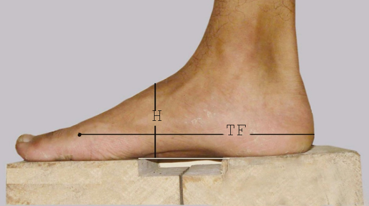 Types Of Foot Arch Of Adult Bangladeshi Male