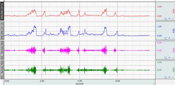Image result for biopac emg