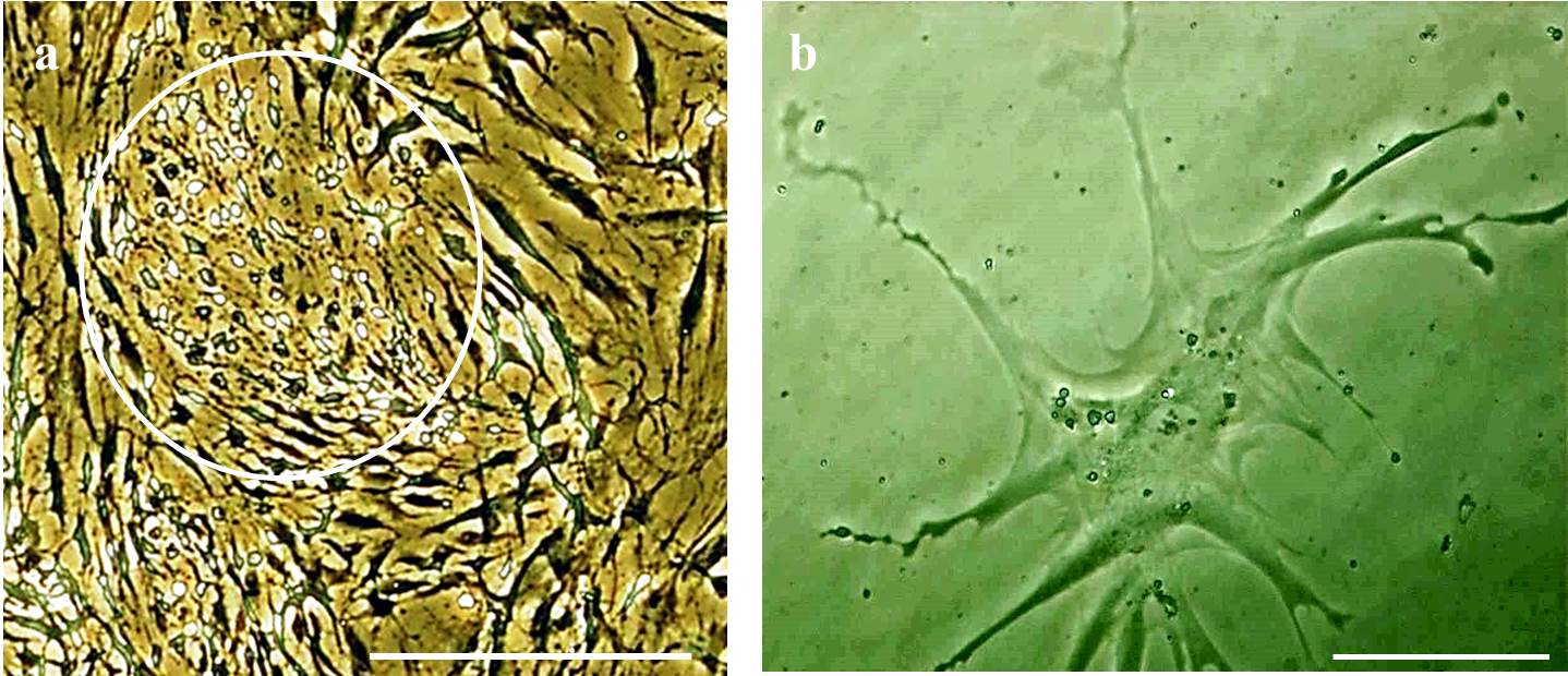 transdifferentiation of bone marrow mesenchymal stem cells