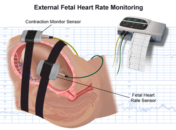 fetal heart monitoring essay Perinatal quality foundation credentialing examination: fetal the perinatal quality foundation credentialing examination allows to fetal heart monitoring.