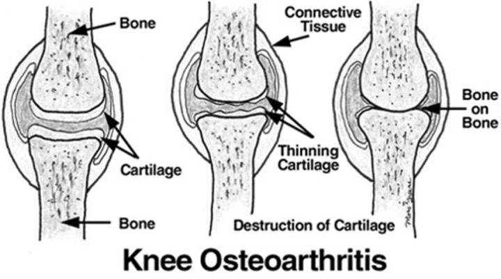 osteoarthritis bone and public health problem Problems with subchondral bone (the bone layer underneath the cartilage in the knee) diagnosis of knee osteoarthritis as is the case when any type of arthritis is suspected , the initial consultation with your doctor begins with a discussion of the symptoms that you have been experiencing.