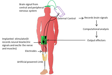 brain controlled artificial legs Mind-controlled prosthetics are arm could be translated to prosthetic legs in more refined deep brain stimulation, which would help control tremors in.