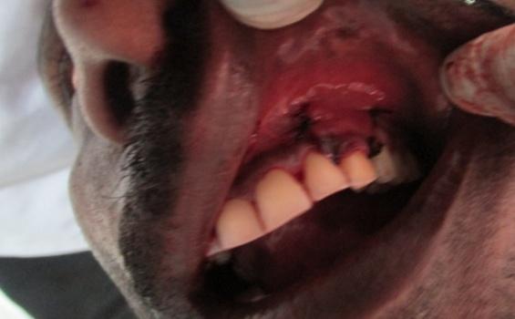 dental caries research paper