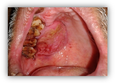 Oral Squamous Cell Carcinoma of Palate – A Case Report and Review of