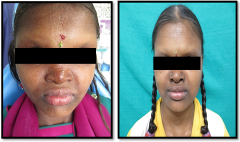 Ectodermal Dysplasia – A Case Study of Two Identical Sibilings