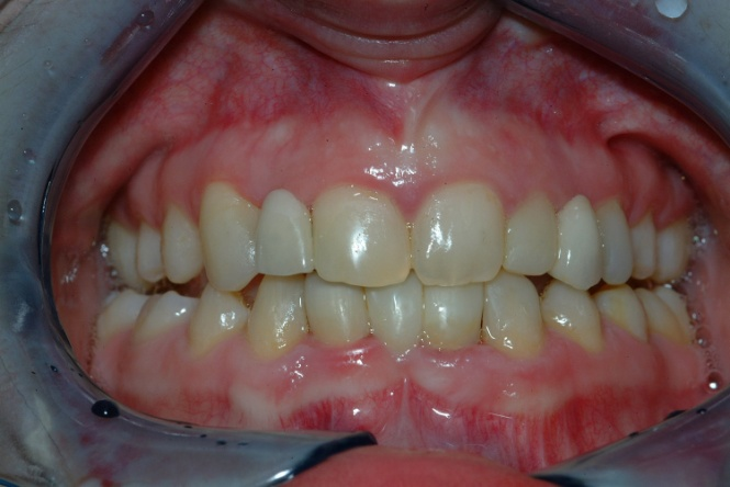 use of adhesive techniques in the management of hypodontia