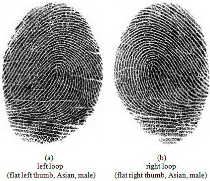 Fingerprint Patterns And The Analysis Of Gender Differences In The Beauteous Fingerprint Patterns