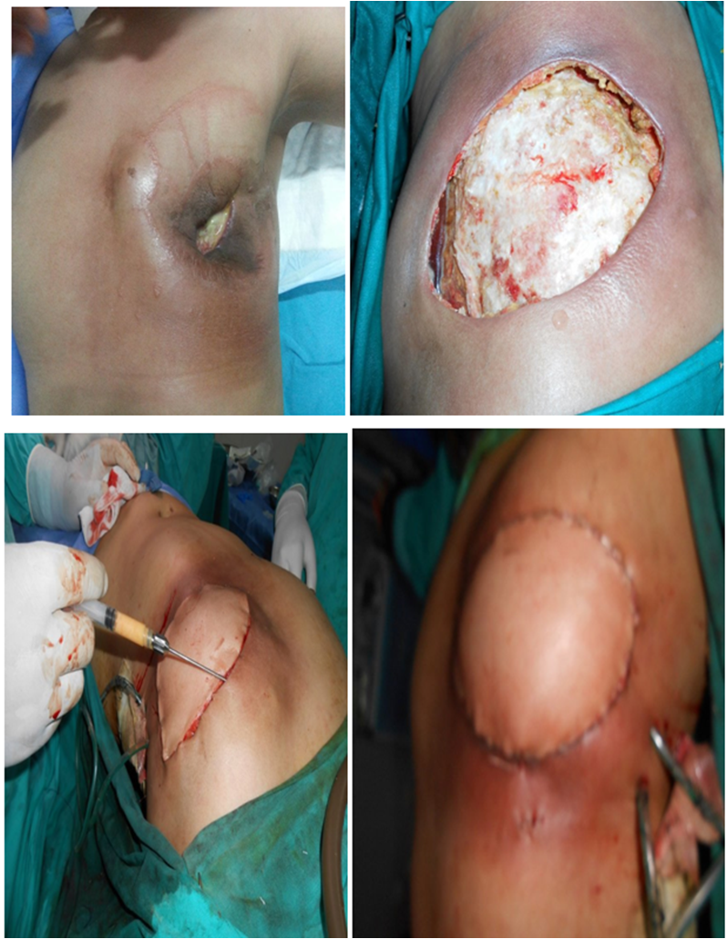 breast reconstruction after Infection