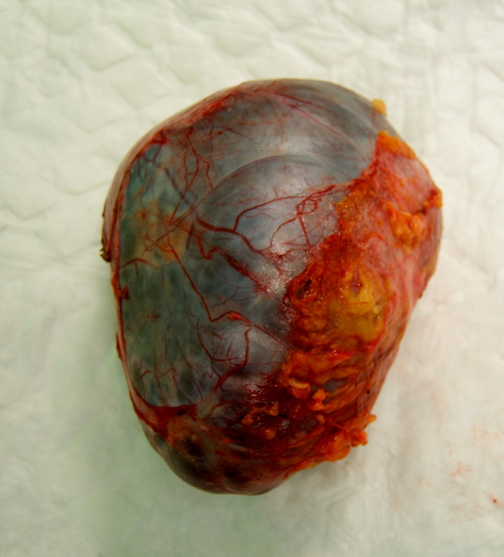 Primary retroperitoneal mucinous cystadenoma with for Cystic lesion with mural nodule