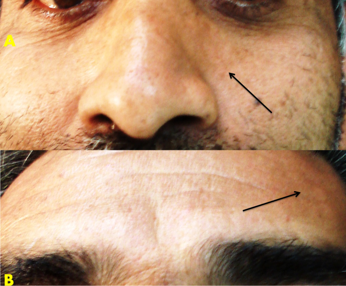 Fordyce Granules Associated with Hypopigmentation of Facial Skin