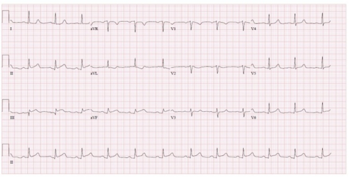Acute Inferior Wall ST-Elevated Myocardial Infarction with