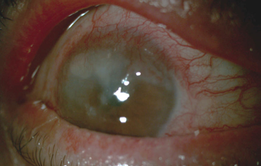 Corneal Manifestations Of Tuberculosis About 2 Cases