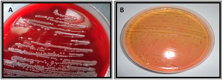 Staphylococcus Aureus In Blood Agar Grey Color