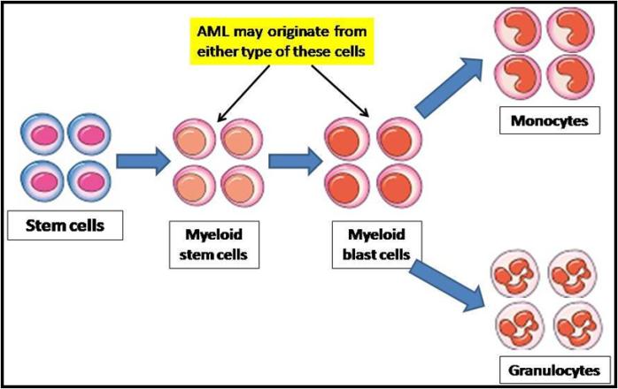 Acute Myeloid Leukemia: A focus on Risk Factors, Clinical